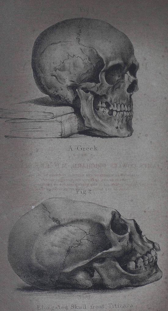 Prichard Skulls illustration.jpg